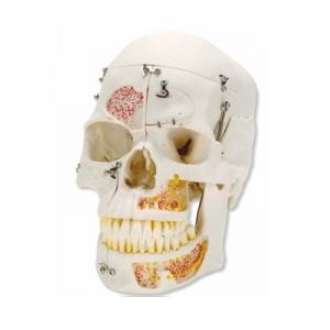 高級演示用人頭骨模型(10分解)