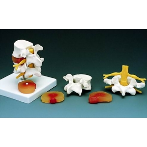腰椎骨模型