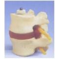 骨刺兩節腰椎模型