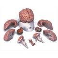 9分解腦模型