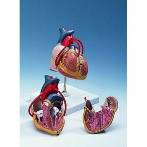 帶血管分支的心臟模型(2分解)