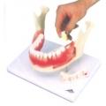 牙病模型(2倍大)